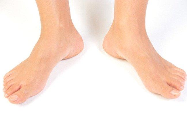 Diabetic Feet